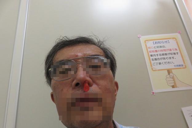 Photos: 内視鏡検査 下準備_02