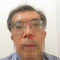 Photos: 健康診断 鼻からカメラ_04