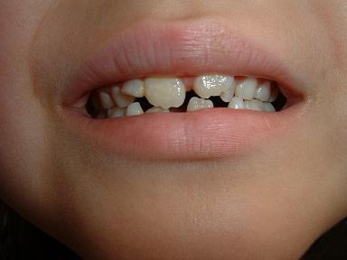 歯ががちゃがちゃ・・・歯医者初体験