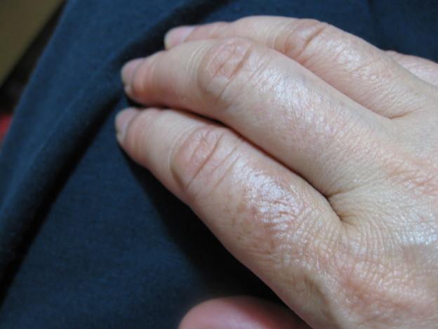 ヤケド11日目 皮膚が茶色くテカってきた