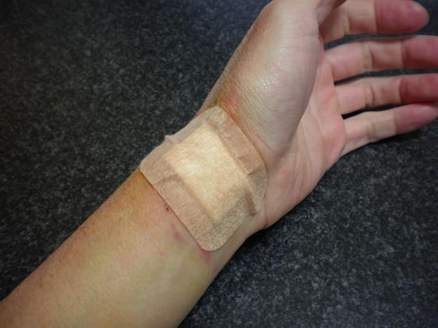 ※血液注意_カテーテル検査_術後_2日目(心臓カテーテル検査)_左手首より01